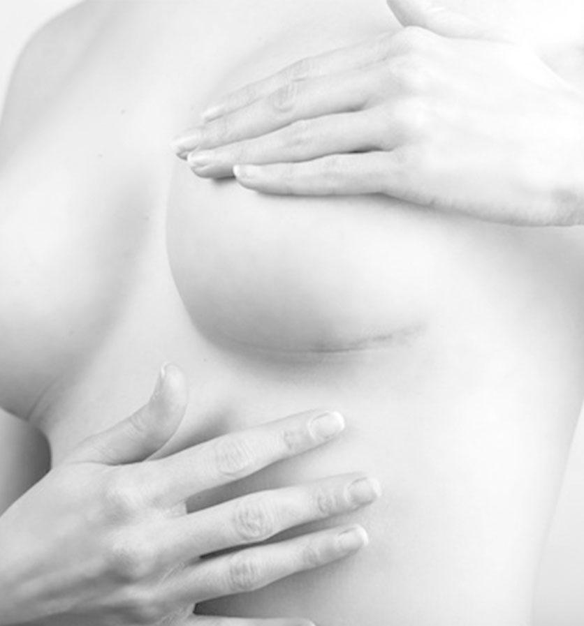 Cancérologie mammaire et gynecologique à vannes